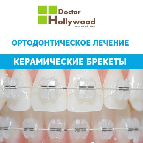 установка виниров на зубы в москве