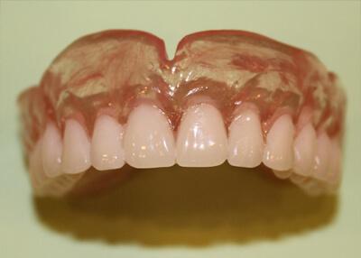 зубные виниры цена москва