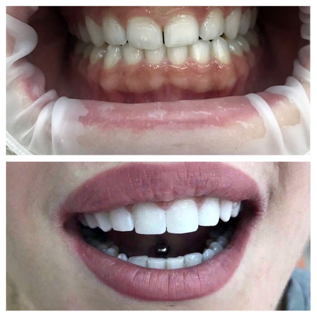 Наращивание зубов эстетическая реставрация