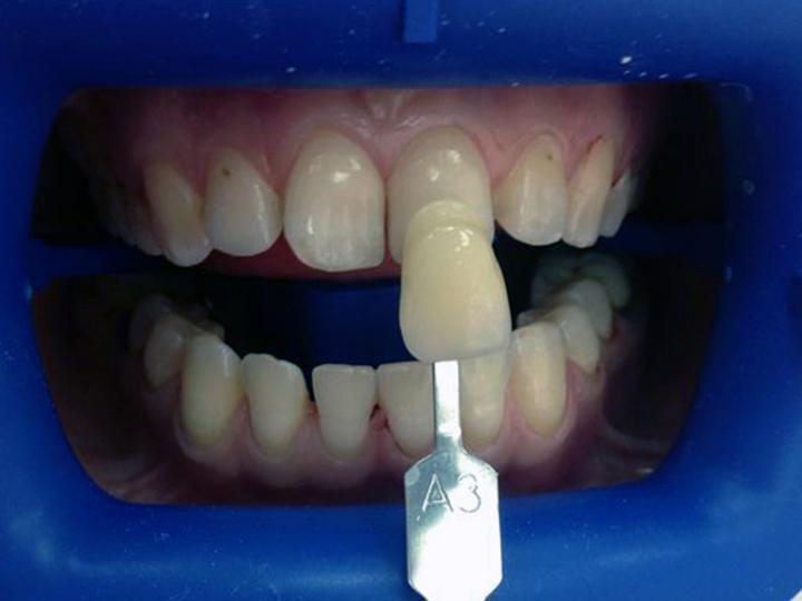 Отбеливающий порошок для зубов японский