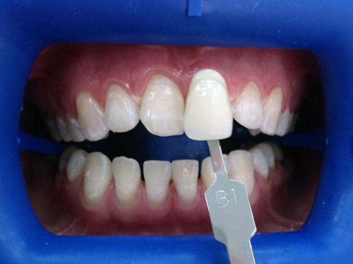 зум 4 отбеливание зубов в спб